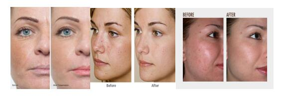 Hydrafacial machine before and after