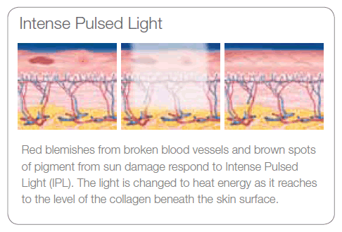 IPL Photorejuvenation Treatment theory