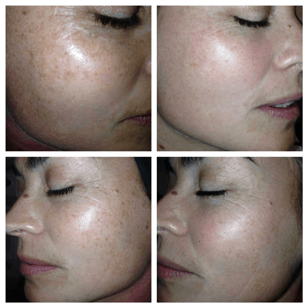 IPL Photorejuvenation Treatment