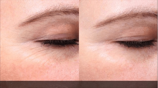 Picosecond Laser Machine wrinkle removal