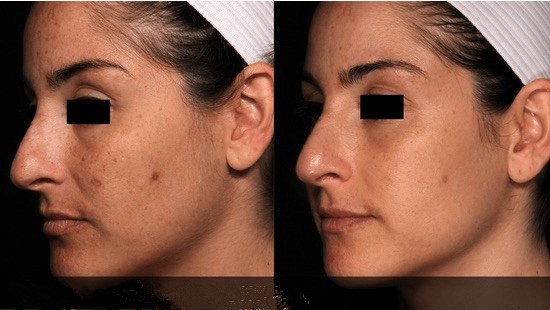 Picosecond Laser acne scar removal