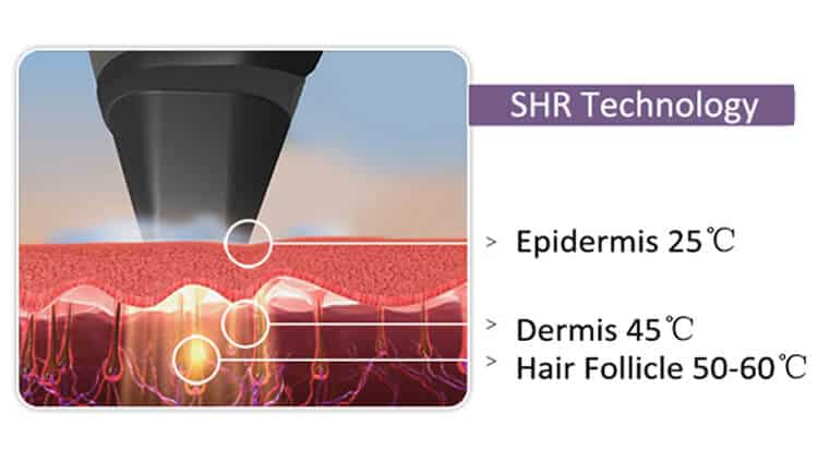 Diode hair removal laser in-motion shr