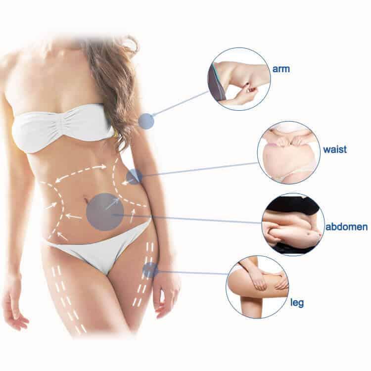 Liposonic Treatment