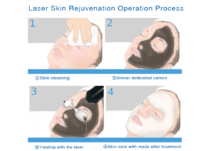 Laser carbon facial treatment procedure