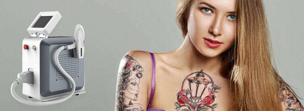laser tattoo removal machine uk